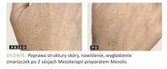 Mezoterapia igłowa - odmładzanie twarzy, szyi, dekoltu, dłoni - Zdjęcie przed - Dr Szczyt Klinika Chirurgii Plastycznej