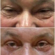 Operace očních víček (Blefaroplastika) - MUŽ, 65 LET, PLASTICKÁ OPERACE HORNÍCH A DOLNÍCH VÍČEK