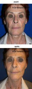 Lifting du visage - Cliché avant - Dr Yohann Derhy