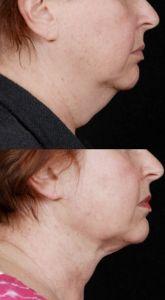 Laserová liposukce - fotka před - MUDr. Jiří Paděra - Perfect Clinic
