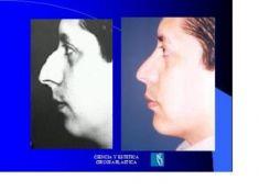 Cirugía de la nariz (Rinoplastia) - Foto Antes de - Dr. Luis Pavajeau Muñoz