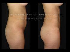 Laser Liposuction - CoolLipo - Photo before - Dr. Rodrigo Morales De la Cerda