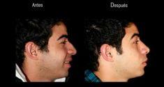 Cirugía de la nariz (Rinoplastia) - Foto Antes de - Dr. Felipe Amaya