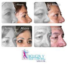 Cirugía de párpados (Blefaroplastia) - Foto Antes de - Belleza y Salud Corporal
