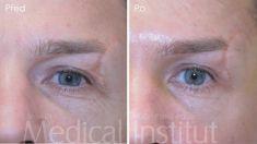 Operace čela  (Forehead lift) - fotka před - Medical Institut Plzeň