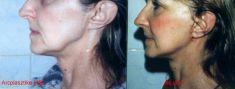 Facelift (Rhytidektómia), SMAS face-lift - Képek előtte - Dr. György Jánky