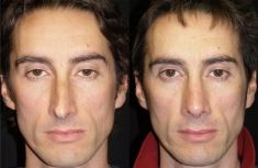 Rinoplastica - Le linee estetiche del dorso sono state ripristinate correggendo la deviazione e le irregolarità di dorso e punta