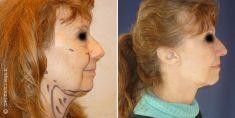 Lifting du visage - Cliché avant - Dr Nicolas Zwillinger