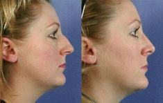 Rhinoplastie - Affinage de la pointe du nez Correction de l'arête du nez