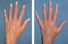 Plazma terapie RegenPlazma - fotka před - Klinika estetické medicíny Petra Clinic