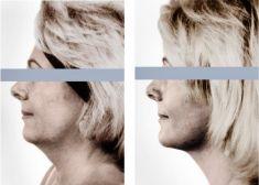 Liposuction - Photo before - doc. MUDr. Jan Měšťák, CSc.