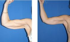 Arm Lift Surgery - Photo before - M.D., F.A.C.S. Bernard A. Shuster