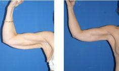 Arm Lift Surgery - Photo before - M.D., F.A.C.S. Bernard A. Shuster