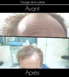 Traitements de la chute des cheveux - Cliché avant
