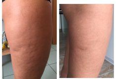 Alternativa alla liposuzione - rimozione del grasso e della cellulite non invasiva - Foto del prima