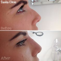 Korekta nosa kwasem hialuronowym - Zdjęcie przed - Dr Iwona Radziejewska-Choma