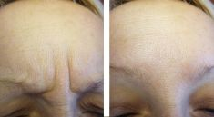 Esthé Laser Clinic - fotka před - Esthé Laser Clinic