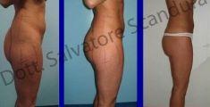 Liposuzione - Foto del prima - Dott. Salvatore Scandura M.D.