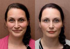 Odstranění vrásek pomocí botulotoxinu - Odstranění mimických vrásek v oblasti čela a zevních očních koutků pomocí aplikace botulotoxinu. Nástup efektu do cca 1 týdne, na fotografii výsledek 1 měsíc od aplikace.