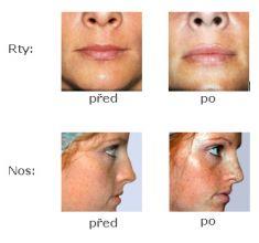 Injekční výplně - fotka před - ARTMED Klinika estetické a laserové dermatologie