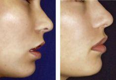 Lip augmentation - cheiloplasty - Photo before - doc. MUDr. Jan Měšťák, CSc.