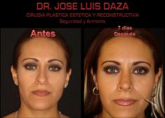 Dr. Jose Luis Daza Flores - Photo before - Dr. Jose Luis Daza Flores