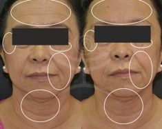 Antiaging - Photo before - Mediestetik, skupina klinik