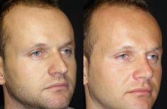 Rinoplastica - Nei trequarti, è evidente il miglioramento delle proporzioni tra radice, dorso e punta.