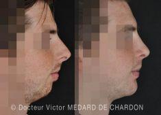Génioplastie - Chirurgie esthétique du menton - Génioplastie par ostéotomie d