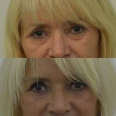 Eye Bags Treatment - Photo before - MUDr. Radek Lhotský