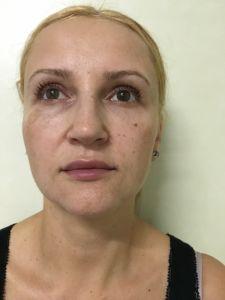 Lipofilling - Fotografie înainte de procedură - Dr. Banacu Ana Luminita