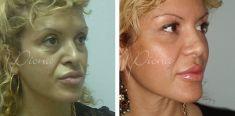 Anti aging - Fotografija prije - Violeta Skorobać Asanin MD, PhD