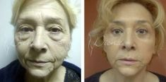 Lifting lica (ritidektomija), SMAS face lifting - Fotografija prije - Violeta Skorobać Asanin MD, PhD