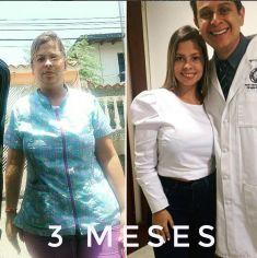 Cirugía de estómago - Foto Antes de