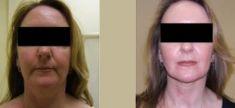 Facelift, Lifting twarzy (podciąganie powłok twarzy) - Zdjęcie przed - dr Arkadiusz Kuna