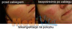 lek. med. Jacek Ściborowicz - MediVita - Photo before - lek. med. Jacek Ściborowicz - MediVita