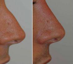 Rinoplastica non chirurgica - Rimodellamento del dorso del naso con rinofiller. Si tratta di un trattamento ambulatorio con il ricovero veloce.