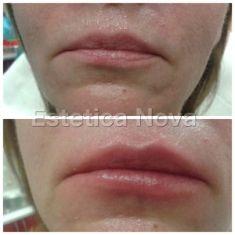 Powiększanie ust (Augmentacja) - Zdjęcie przed - Dr Ewa Rybicka