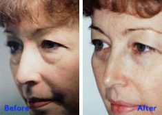 Eyelid surgery (Blepharoplasty) - Photo before - Azim Jahangir Khan M.D.