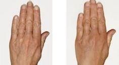 Skinbooster – Vital Injector - fotka před