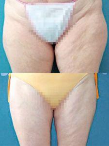 Liposukcia tumescenčná - Fotka pred