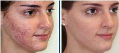 Laserová léčba akné - fotka před