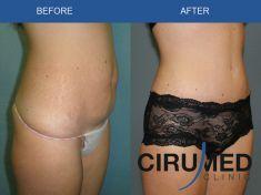 Abdominoplasty (Tummy Tucks) - Photo before - Dr. Alexander Amir Aslani