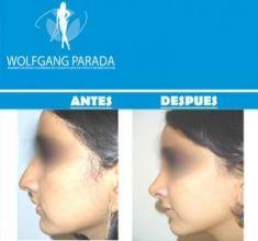 Cirugía de la nariz (Rinoplastia) - Foto Antes de - Dr. Wolfgang Parada Wolfgang Parada