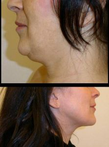 Liposuction - Photo before - MUDr. Libor Kment