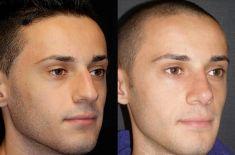 Rinoplastica - Nei trequarti, è evidente il miglioramento delle proporzioni e la correzione della deformità della punta.
