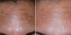 Laserové odstranění tetování a pigmentací - fotka před - Brandeis Clinic by Lucie Kalinová