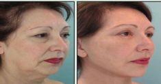 Revitalización de la cara - Foto Antes de