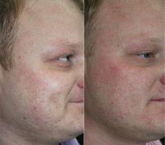 Laser frakcyjny/Fraxel (usuwanie przebarwień, zmian potrądzikowych, odmładzanie skóry) - Zdjęcie przed - dr n. med. Wojciech Rybak - ARS ESTETICA
