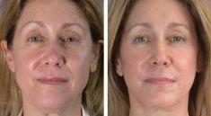 CBP KLINIKA plastické chirurgie - fotka před - CBP KLINIKA plastické chirurgie